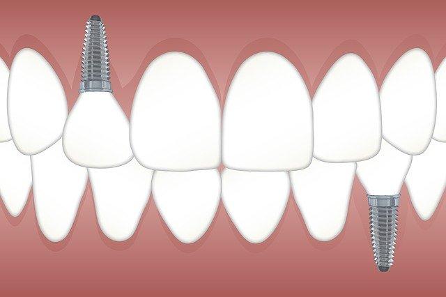implantes dentales en alicante